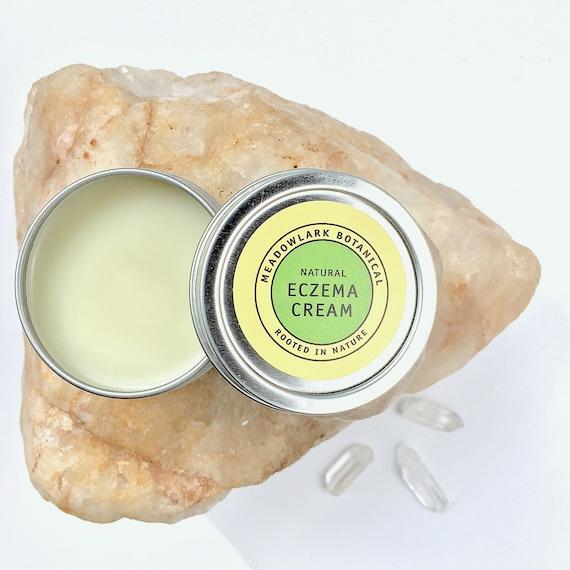Organic Eczema Cream   Healing Herbal Salve with Calendula for Baby + Adults