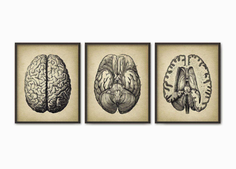 Menschliche Gehirn Anatomie Print 3er Pack Brain Dissection | Etsy