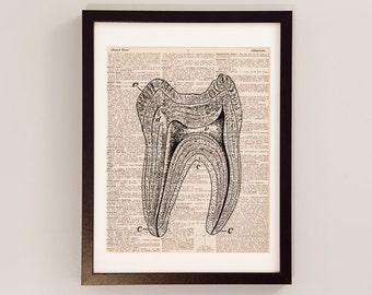 Tooth Print - Anatomy Art - Print on Vintage Dictionary Paper - Dentist Gift - Dental School - Human Molar - Teeth Print