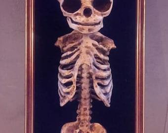 Frame fetus bust