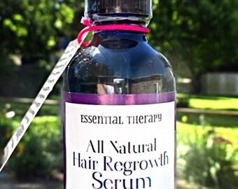 Hair Growth Serum - 100% Natural Hair Regrowth Serum - (Natural Minoxidil Alternative)