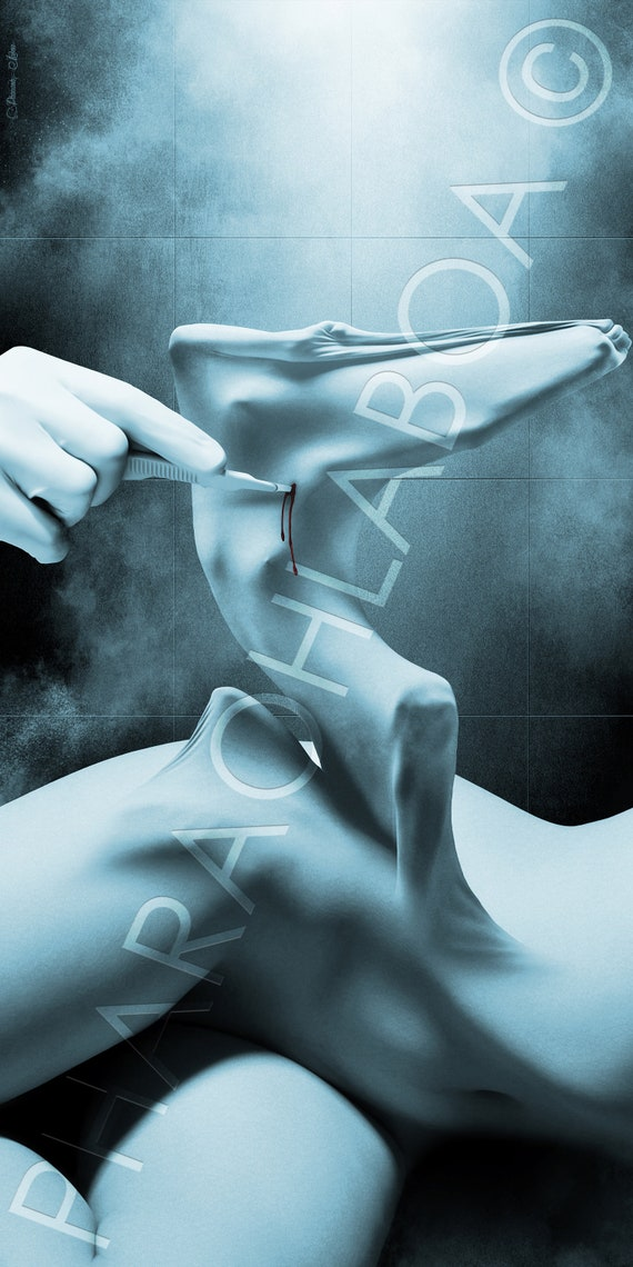Art Print Metal Canvas Surgery Surgeon Woman Female Nude Horror Macabre Dark Disturbing Fantasy Fetish Artwork Beautiful Modern Unique