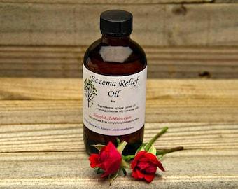 ECZEMA BODY OIL - 4oz sensitive skin, 100%natural, soothes psoriasis, eczema, dry skin, acne, organic essential oils, dermatitis