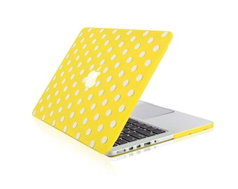 """Green Chevron with Gray Insert Hard Case for Macbook PRO 15/"""" Retina A1398"""
