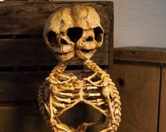Conjoined twin fetus Specimen display OOAK sculpture