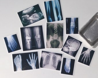 X-rays, Photos, Dollhouse Miniature, 1/12 scale - 1 inch, medical, anatomy, surgery, medical, Doctors, bones, Study, Detective