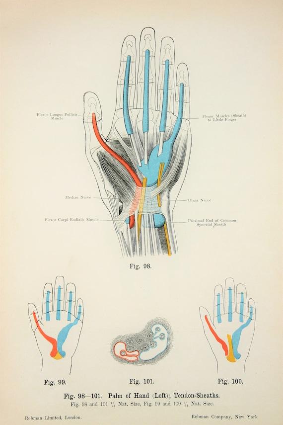Hand Sehnen Nerven Arterien Venen Muskeln c.1900