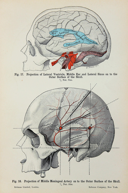Skull Anatomy Brain c.1900 DOUBLE SIDED Antique Anatomy | Etsy