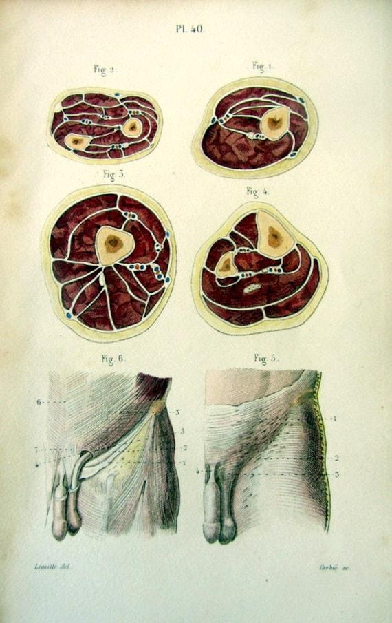 1852 Anatomie Penis Hoden antike Farbe Gravur der Querschnitt