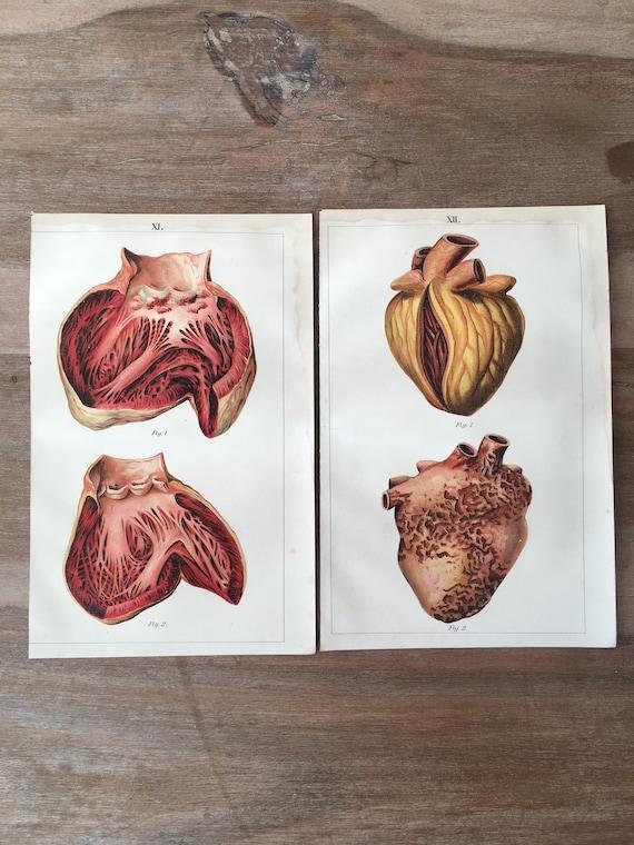 Human Diseases Heart Illustration Medical illustration Anatomy Print 1900 Original Antique Anatomy Lithograph set of 2 Heart diseases