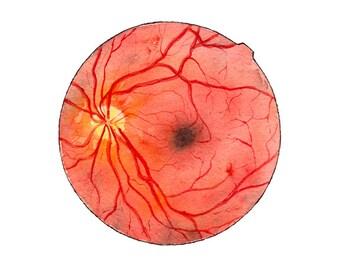 Retina, watercolor print, science art, anatomy, medical print, medical art, medical illustration, science print, ophthalmology, watercolor