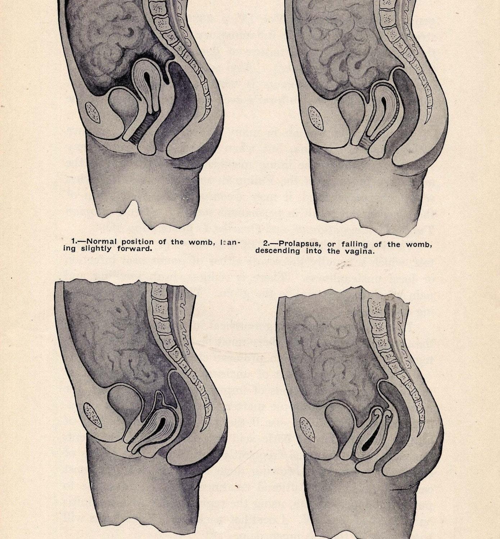 Schön Weibliche Anatomie Gebärmutter Diagramm Galerie - Anatomie ...