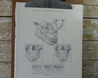Vintage Dental Picture Fracture of the Mouth 1952