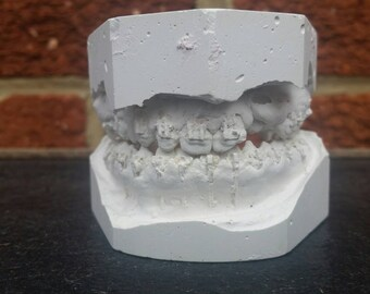 Plaster Dental Mold with Braces // Plaster Tooth Mold // Medical Oddities