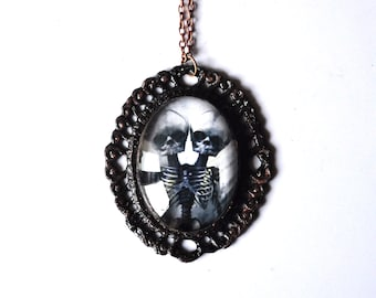 Siamese twins skeleton pendant; Necklace chain & glass cabochon. Gothic jewelry