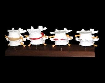 Lumbar L4/L5 Set w/ 4 Stage Degeneration Anatomy Model on a Walnut Wood Base (Model #HD109) - American Anatomical