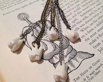 YOUR SUPPLIED TOOTH Made Into A Pendant Necklace - Human or Large Pet Canine