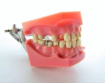 Vintage Columbia Dentoform Corp. Typodont Dentoform, Orthodontist Teaching Jaw Model with Removable Teeth
