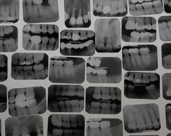 Xrays Dental Tooth Bone Films, Vintage Dental Xrays Film Panoramic, Dental Teeth Photography, Black and White Film, Medical Supplies