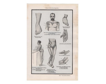 c. 1926 BODY CONTORTIONS PRINT - original antique medical print - human anatomy print -  malformations print - congenital disorder