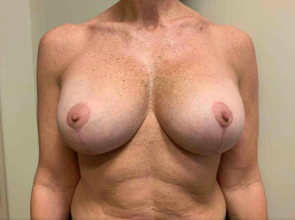 Asymmetrical breasts - Post cosmetic surgery