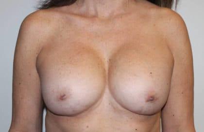 Slender breasts