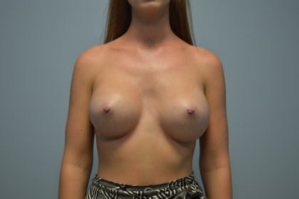 Athletic breasts - Post Augmentation