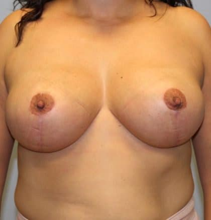 Relaxed breasts - Post breast lift