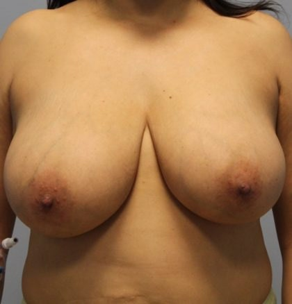 Relaxed breasts