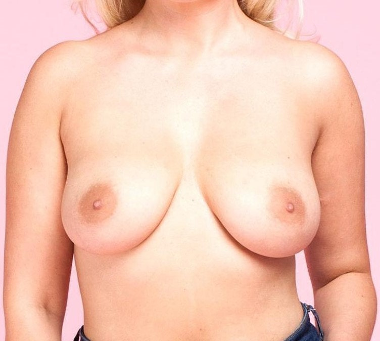 Side Set breasts